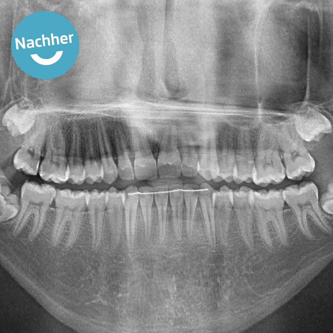 Kind zahn wird grau Schneidezahn wird